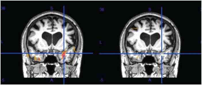 Brain Before and After NET Treatment